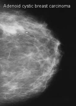 Adenoid cystic carcinoma of breast