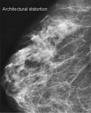 breast xray architectural distortion