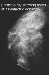 breast asymmetric density