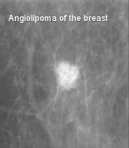 breast angiolipoma x-ray