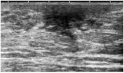 retroareolar breast  lesion ultrasound