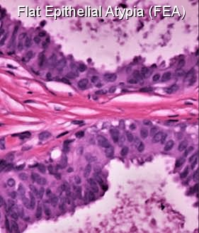 Flat epithelial atypia breast