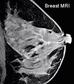 suspicious breast MRI