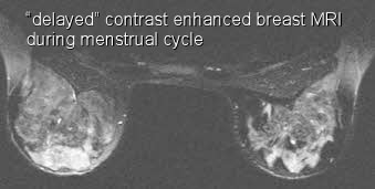 delayed contrast enhanced MRI during menstrual cycle