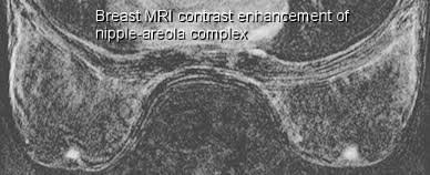 mri contrast enhance nipple areola breast mri