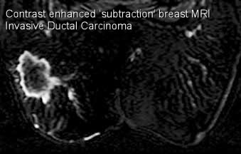 Acr breast mri guidelines