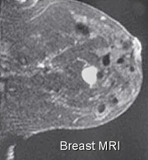 MRI - National Breast Cancer Foundation