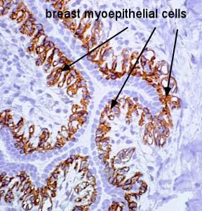 breast myoepithelial cells