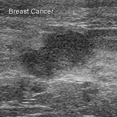 Surgery breast ultrasound images