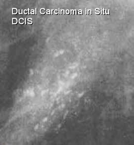 Ductal carcinoma in breast