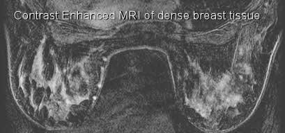 dense breast tissue contrast enhanced MRI