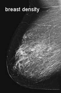 breast density X-ray