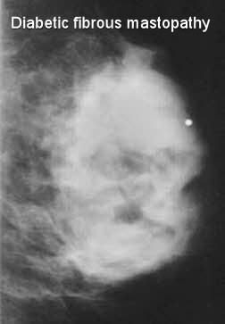 diabetic fibrous breast mastopathy