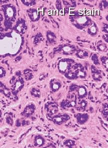 Breast cancer t63 stain
