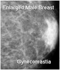 enlarged male breast gynecomastia