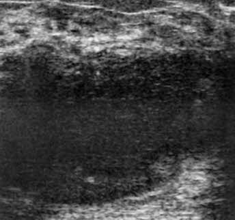 puerperal mastitis of the breast