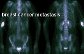 breast cancer metastasized to bones