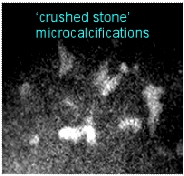 crushed stone probably malignant microcalcifications