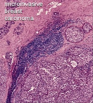 microinvasive carcinoma of the breast