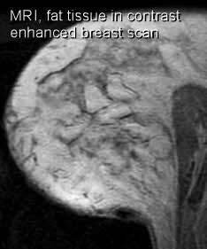 MRI contrast enhanced fat tissue in breast
