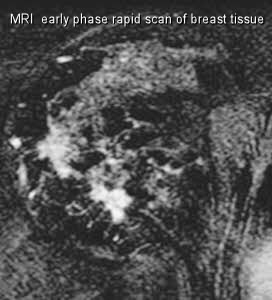 breast MRI early phase rapidscan