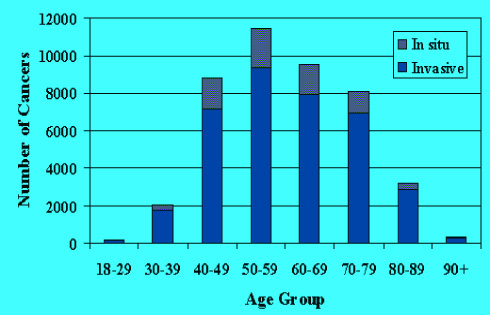 breast cancer and DCIS rates by age groups