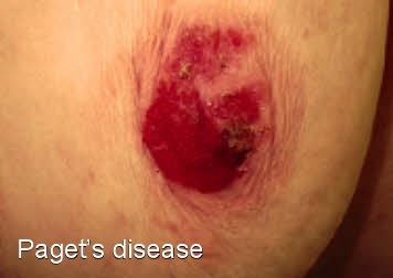 Pagets disease of the breast - Mayo Clinic