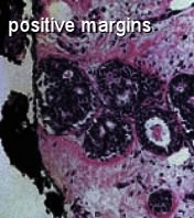 breast tumor positive margins