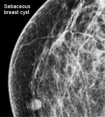 breast sebaceous cyst
