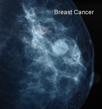 X-ray breast cancer