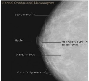 Mammography and ultrasound failure of imperfection