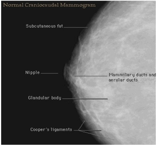 Mammogram Pictures With Descriptions of Different