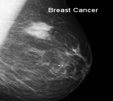 Breast cancer click for mammograms
