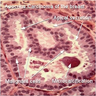 histological features of apocrine breast cancer