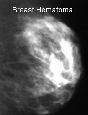 breast hematoma mammography