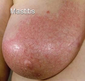 breast mastitis