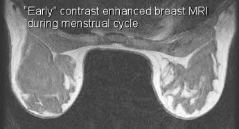 contrast enhanced breast mri during menstual cycle