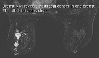 Breast mri follow up
