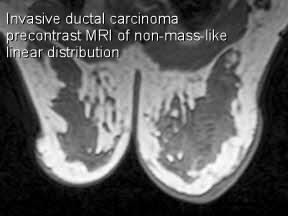 T Mri Nonm Linear Precontrast Invasive Ductal Carcinoma