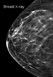 X-ray of the breast