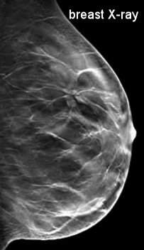 Diagnosis breast ultrasound results