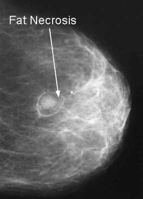 breast xray fat necrosis