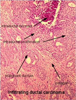 Invasive carcinoma of breast