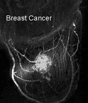 large breast cancer mri