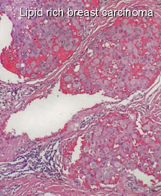lipid rich carcinoma of the breast
