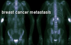 breast cancer metastasized to bones