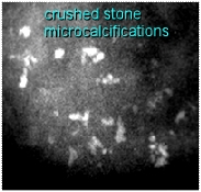 crushed stone casting microcalcifications, very high probability of malignant breast cancer development