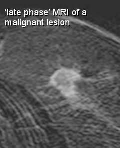 late phase contrast enhancement of MRI breast cancer lesion