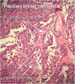 papillary breast carcinoma projections and vascular stem