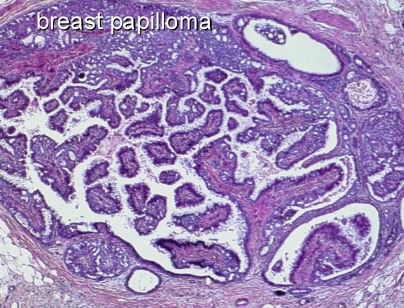Recurring breast papilloma risk